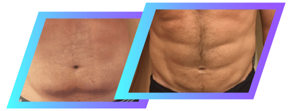 Liposuction Sacramento | NorCal Liposculpture