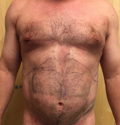 Abdomen Before & After Patient #205