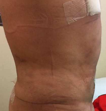 Abdomen Before & After Patient #208