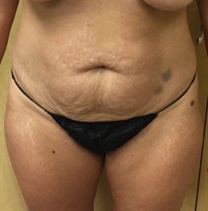 Abdomen Before & After Patient #217