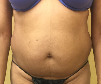 Abdomen Before & After Patient #220