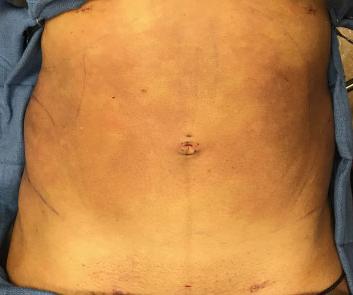 Abdomen Before & After Patient #220