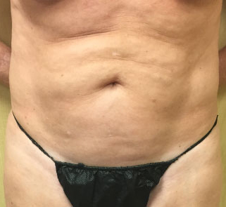 Abdomen Before & After Patient #223