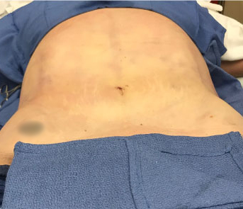 Abdomen Before & After Patient #173