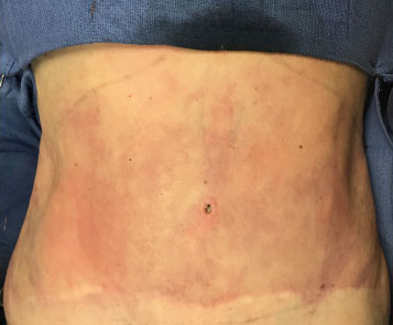 Abdomen Before & After Patient #176