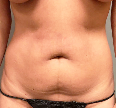 Abdomen Before & After Patient #179