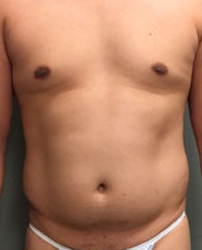 Abdomen Before & After Patient #185