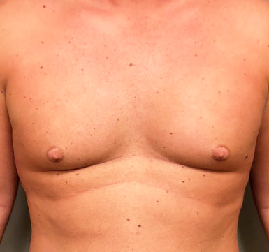 Chest Before & After Patient #301
