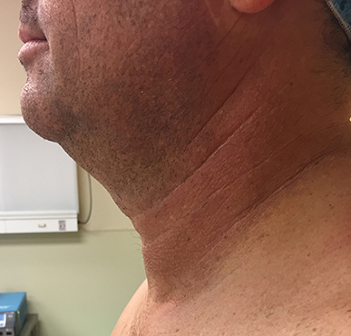 Neck Before & After Patient #311