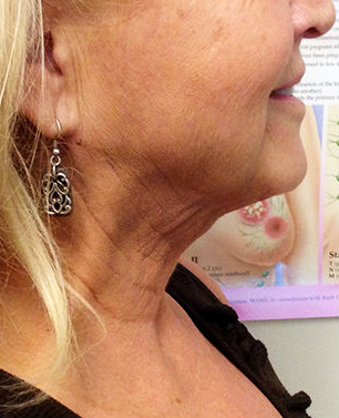 Neck Before & After Patient #316