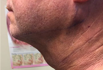 Neck Before & After Patient #325