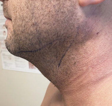 Neck Before & After Patient #328