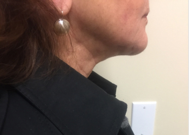 Neck Before & After Patient #334