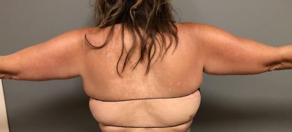 Vaser Liposuction Before & After Patient #480