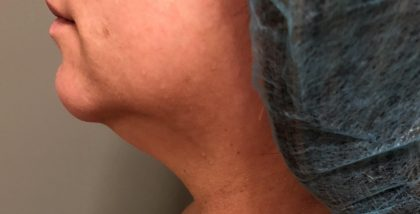 Neck Before & After Patient #537