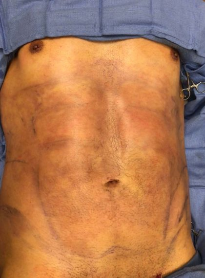 Abdomen Before & After Patient #583