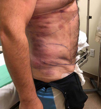Abdomen Before & After Patient #597