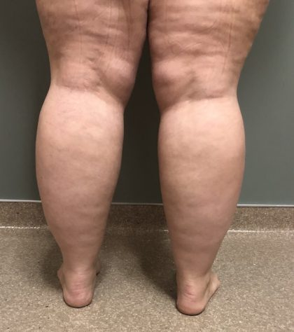 Legs Before & After Patient #739