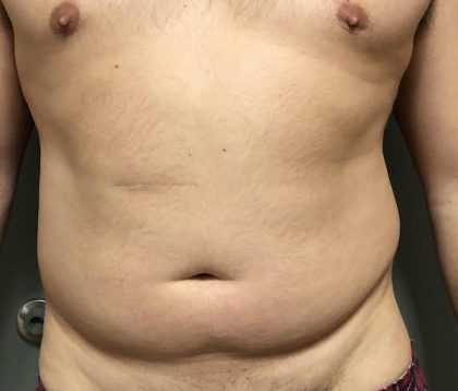 Abdomen Before & After Patient #751
