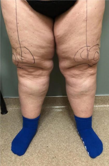 Legs Before & After Patient #748