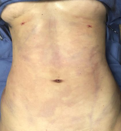 Abdomen Before & After Patient #823