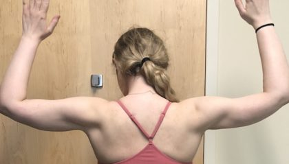 Arms Before & After Patient #1042