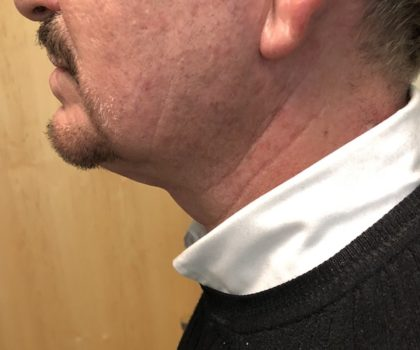 Neck Before & After Patient #994
