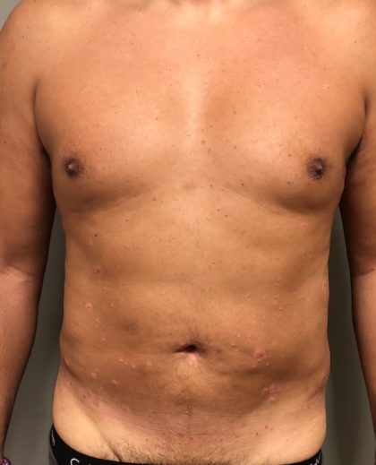 Abdomen Before & After Patient #997