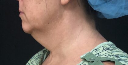 Neck Before & After Patient #1173