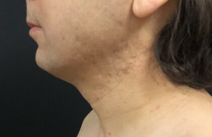 Neck Before & After Patient #1187